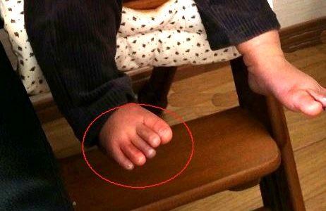 【生後10ヵ月】赤ちゃんの足が紫に。冬のしもやけ体験談