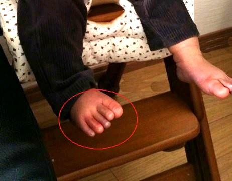 赤ちゃんの足のしもやけ